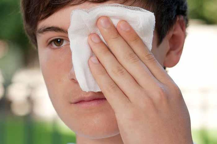 Ушиб глаза: симптомы и лечение в домашних условиях