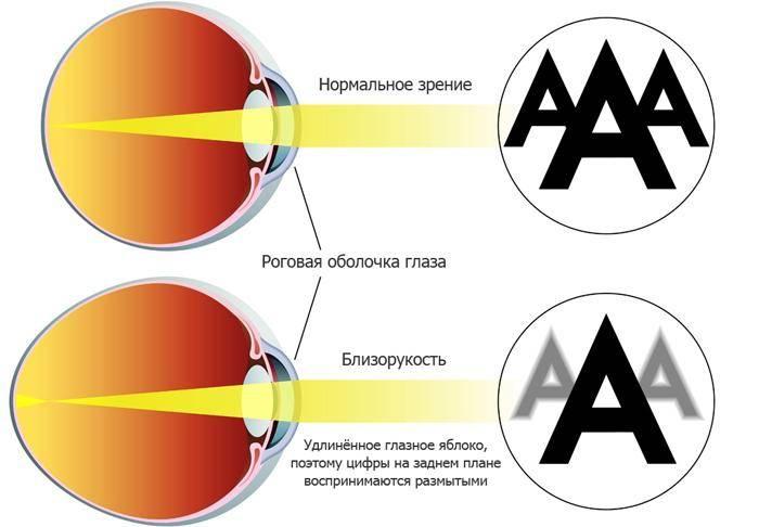 Как восстановить зрение, самостоятельно и в короткие сроки