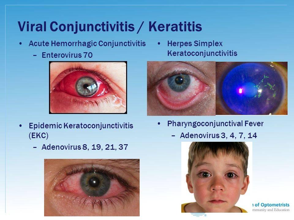 Герпетический кератит: причины, симптомы и лечение (фото)
