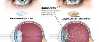 Факосклероз хрусталика глаза - что это такое, причины и лечение