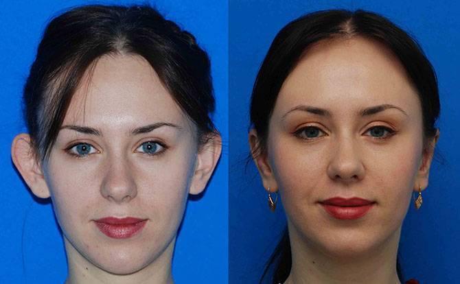 Асимметрия лица, глаз и губ: причины и методы исправления