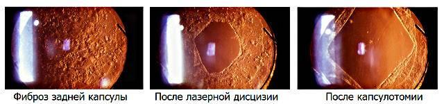 Катаракта глаз: что это за болезнь, ее причины, симптомы и лечение
