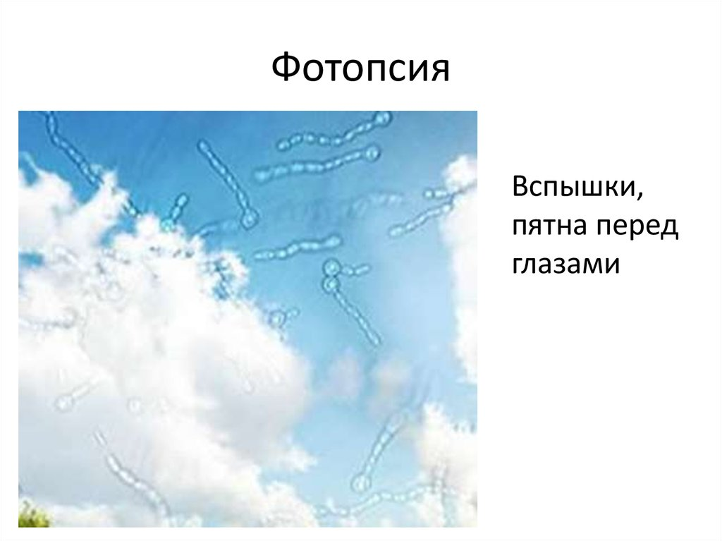 Фотопсия что это лечение причины и симптомы - мед портал tvoiamedkarta.ru