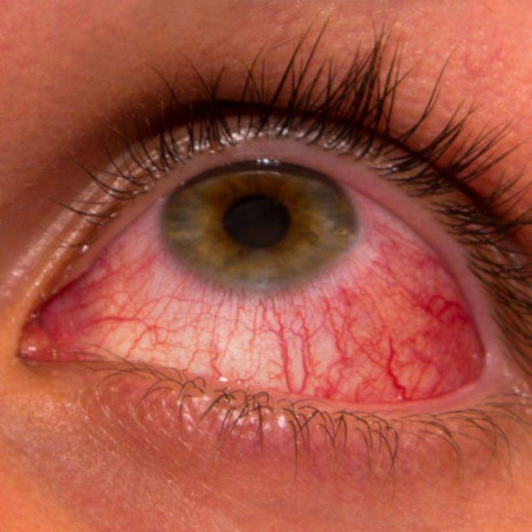 Аллергия на глазах: симптомы и лечение (компрессы, препараты)
