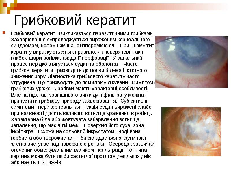 Кератит глаза