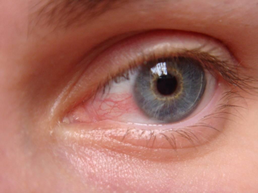 Увеит глаза: симптомы и лечение