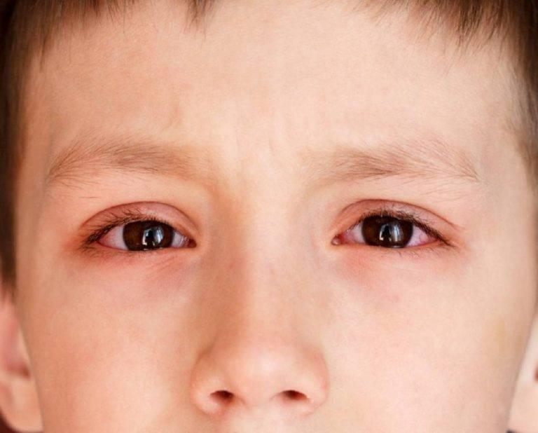 Гнойный конъюнктивит у детей: причины, симптомы и лечение