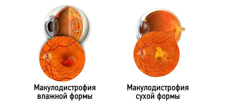 Возрастная макулярная дегенерация (вмд): формы и лечение