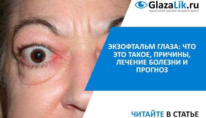 Что такое экзофтальм: причины, симптомы, лечение oculistic.ru что такое экзофтальм: причины, симптомы, лечение
