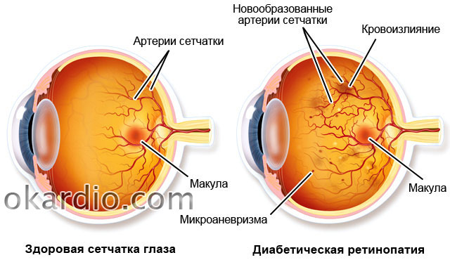 Ангиопатия у ребенка – сетчатки глаза у новорожденного: что это такое