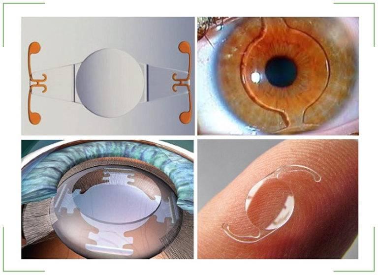 Противопоказания к операции по удалению катаракты: когда нельзя заменить хрусталик