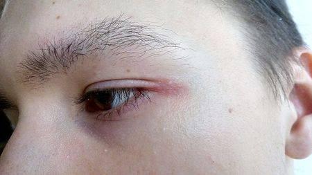 Чешутся глаза в уголках - причины зуда около переносицы