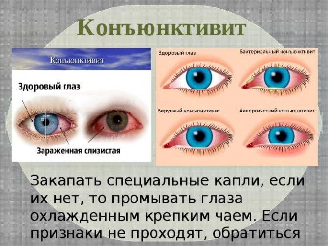 Причины того, что гноятся глаза у взрослого, чем лечить?