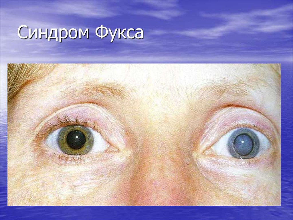 Синдром фукса в офтальмологии: симптомы, причины, лечение, прогноз oculistic.ru синдром фукса в офтальмологии: симптомы, причины, лечение, прогноз