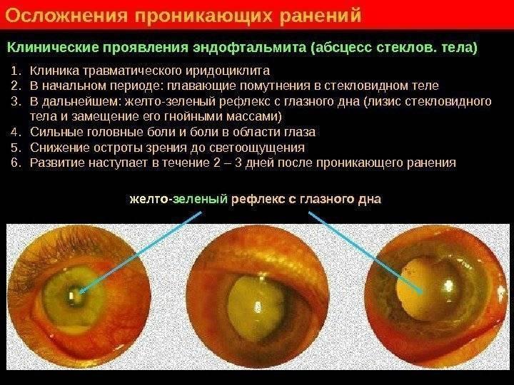 Эндофтальмит что это причины лечение последствия - мед портал tvoiamedkarta.ru