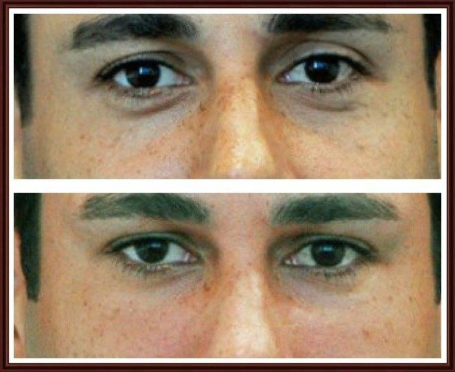 Синева под глазами причины. темные круги под глазами у мужчин: причины возникновения