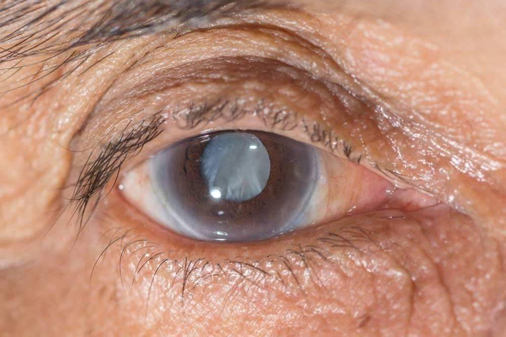 Как лечится незрелая катаракта? можно ли обойтись без операции?
