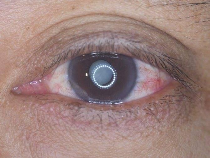 Склероз хрусталика глаза - что это такое?