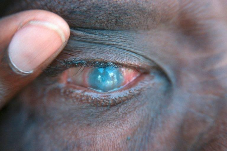 Трахома глаза: возбудитель, стадии, лечение, осложнения и симптомы