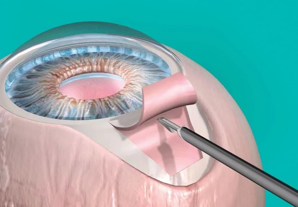Лазерная коррекция зрения: как она делается • блог академии зрения