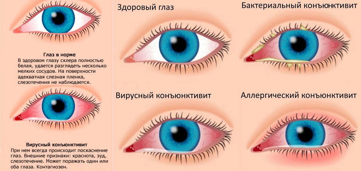 """Бактериальный конъюнктивит: причины и лечение - """"здоровое око"""""""
