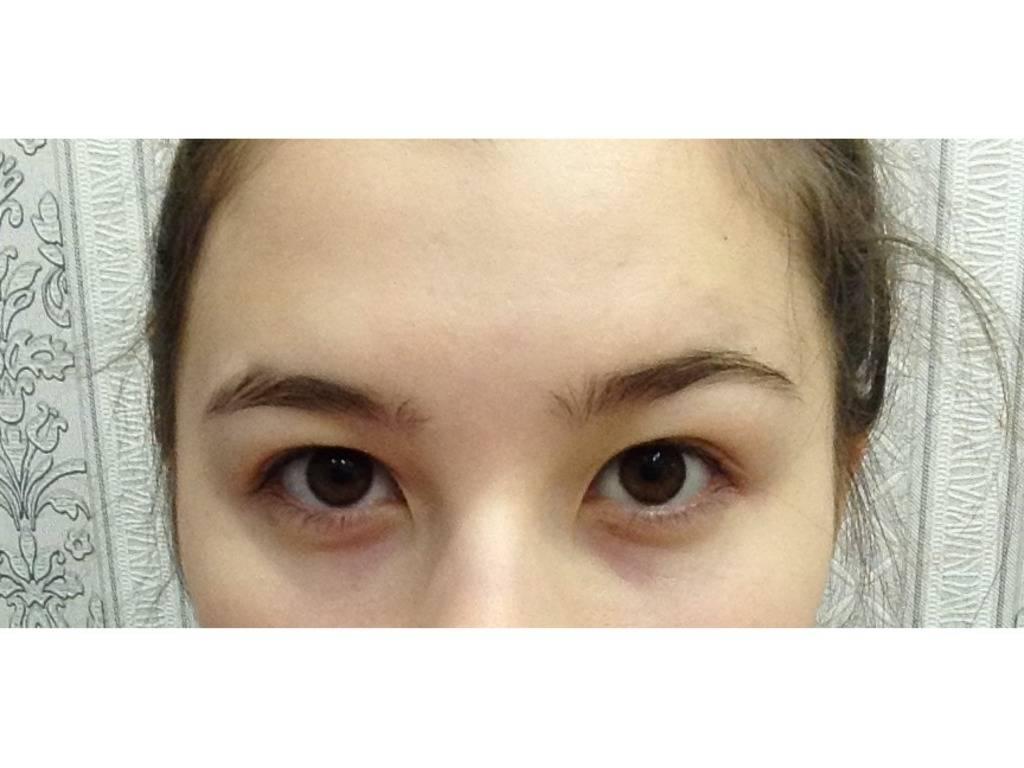 Эпикантус века (монгольская складка) на лице: лечение, причины и фото