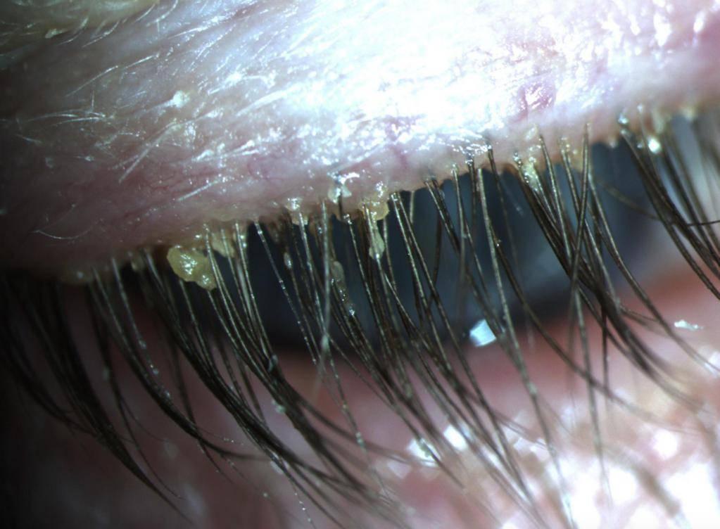Глазной клещ у человека: лечение, симптомы, фото