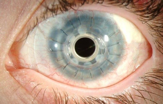 Синдром фукса: гиперхромия глаз, рубеоз в офтальмологии, пятно радужки