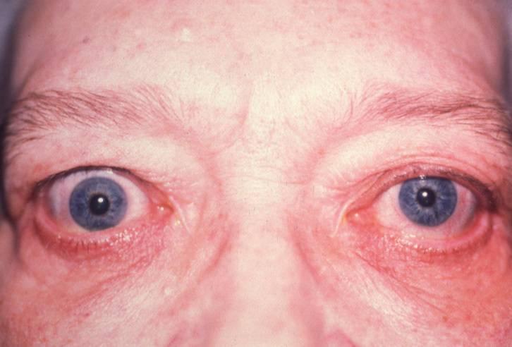 Эритремия - симптомы, лечение, диагностика, причины, исход