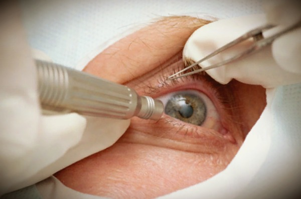Экстракция катаракты: интракапсулярная и экстракапсулярная (с иол) | мрикрнц.рф