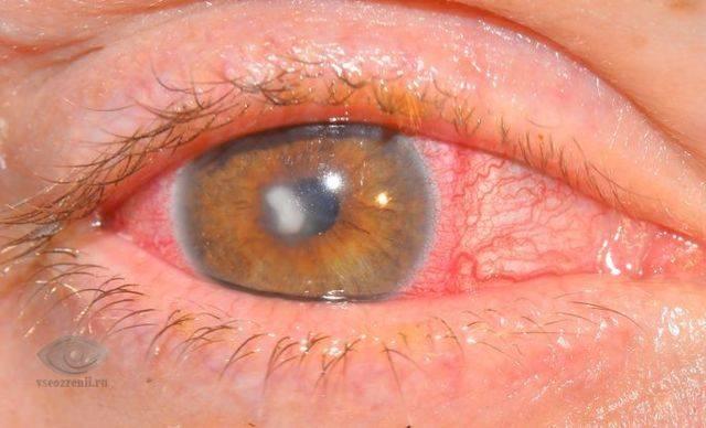Кератома: симптомы, фото, лечение. чем лечить кератому кожи