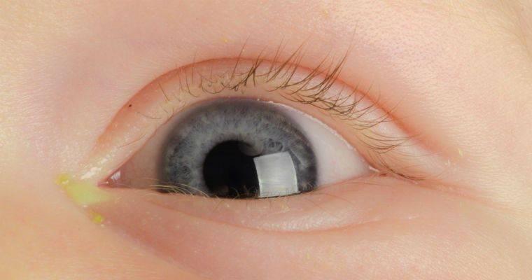 Гной в глазах у ребенка: причины, принцип лечения без вреда