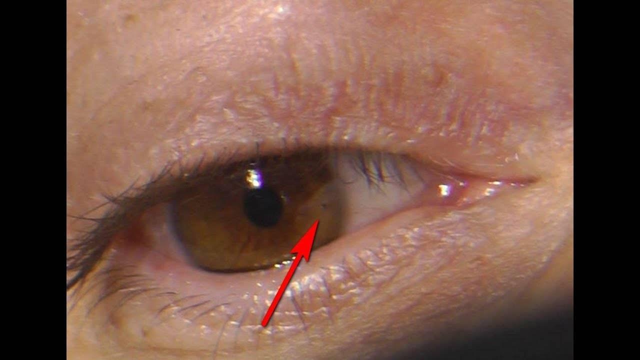 Болит глаз (как будто что-то попало)