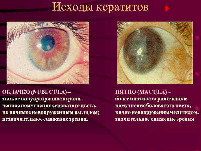 Кератит глаз: чем опасно это заболевание и как с ним бороться