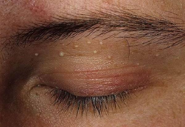 """Прыщ на веке: причины, симптомы, виды, лечение - """"здоровое око"""""""