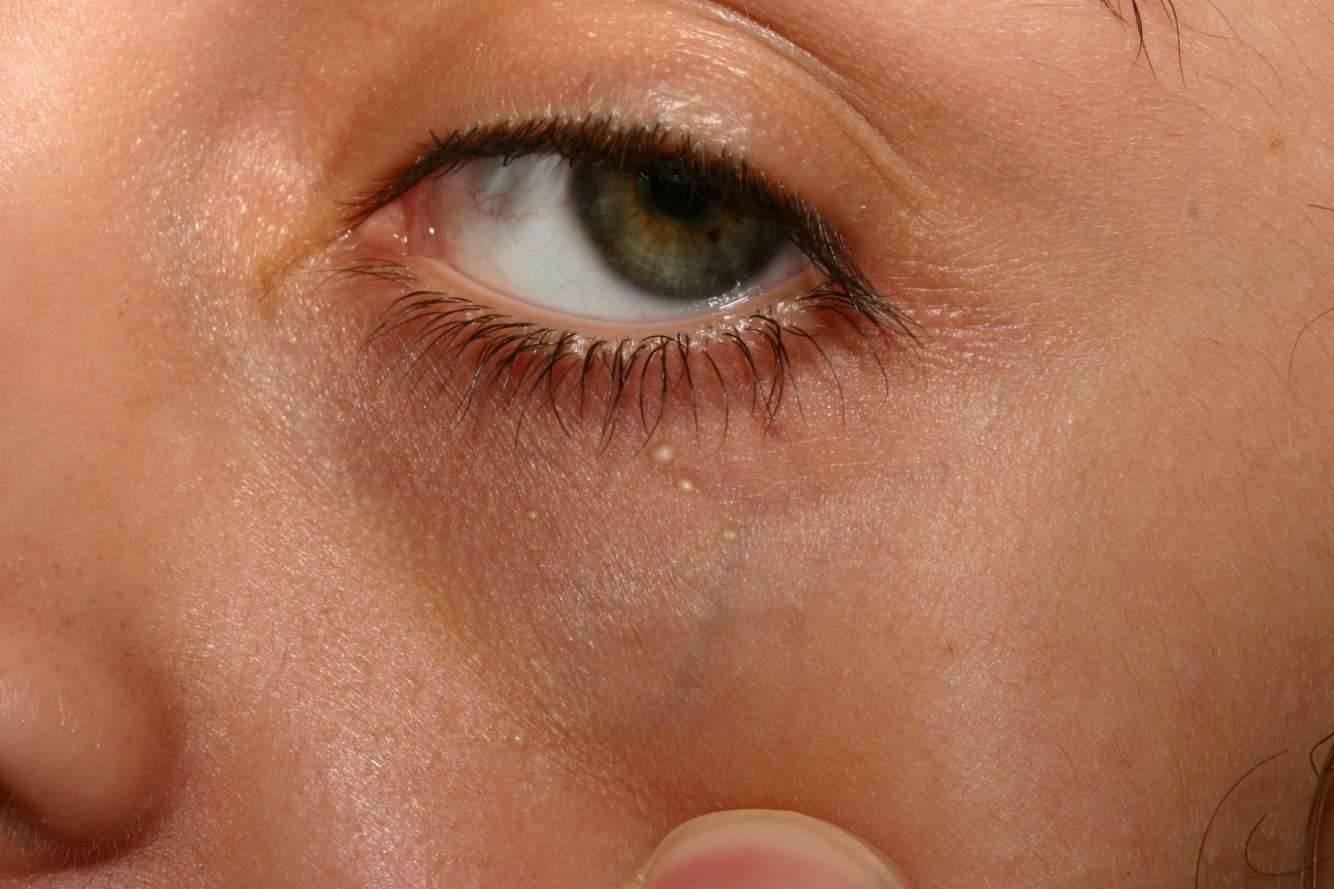Причины появления милиумов на веках, характерные симптомы, методы диагностики и лечения
