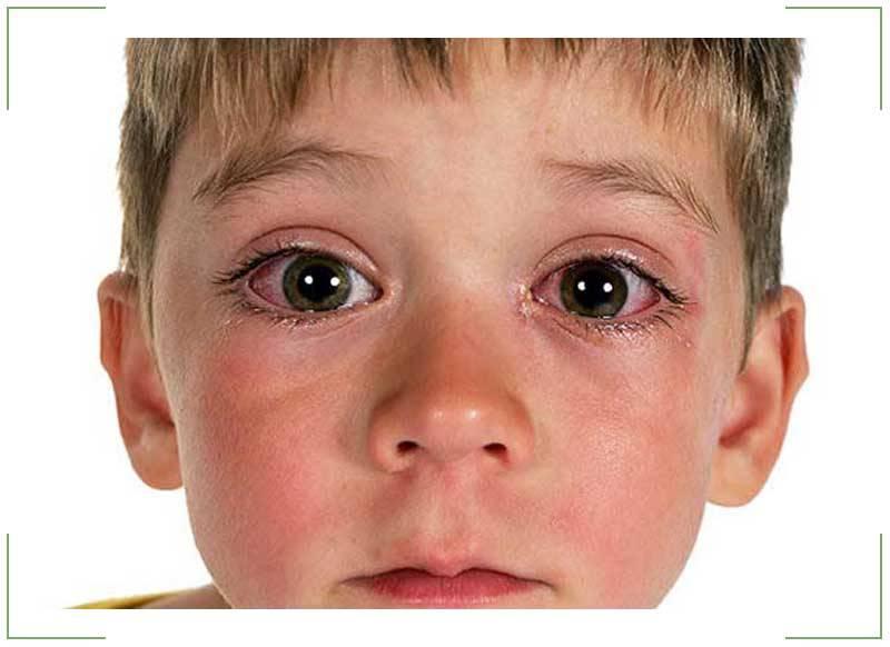 Конъюнктивит и сопли у ребенка: причины, сопуствующие симптомы в виде кашля и температуры, как лечить малыша, которому 3 года