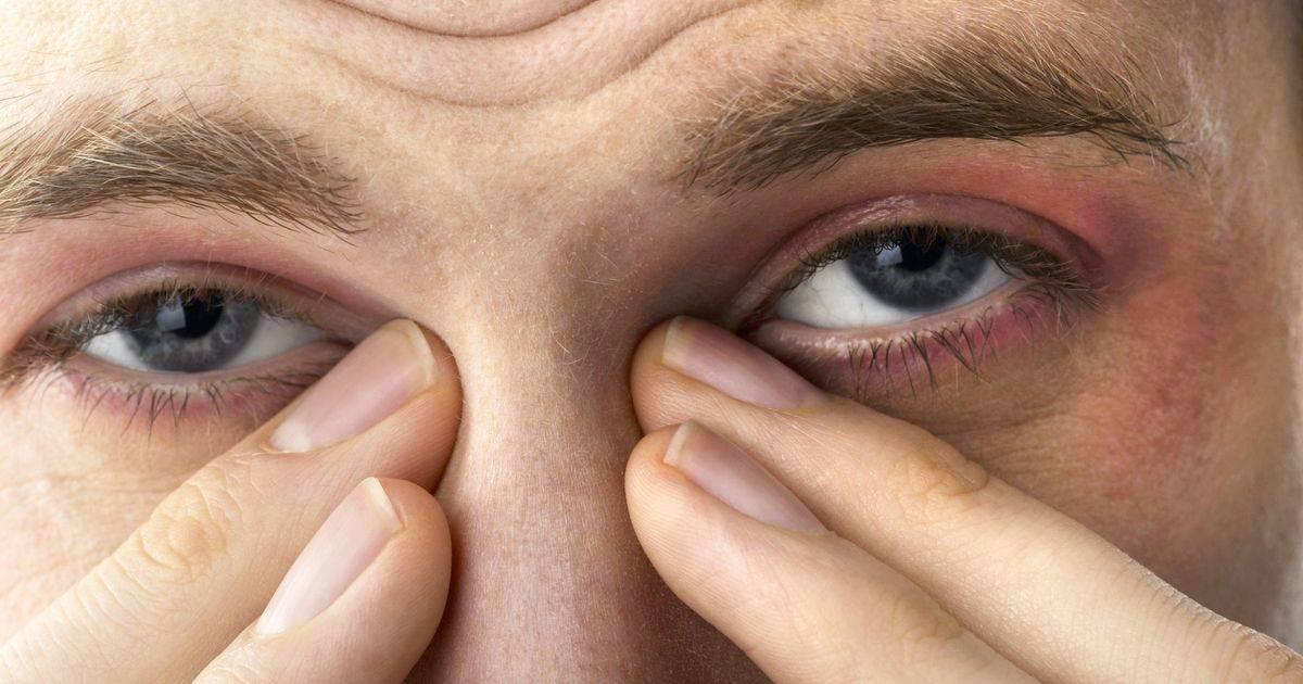 """Почему щиплет и слезятся глаза и что делать? причины и лечение на сайте """"московская офтальмология""""!"""