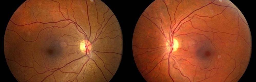 Пигментный невус хориоидеи глаза | лечение глаз