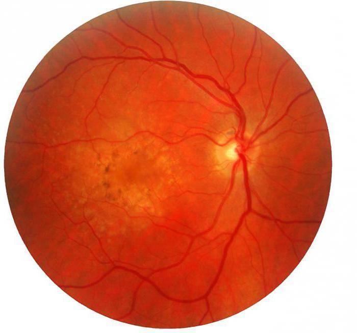 Дистрофия глаза : основные виды, причины, симптомы, лечение | компетентно о здоровье на ilive