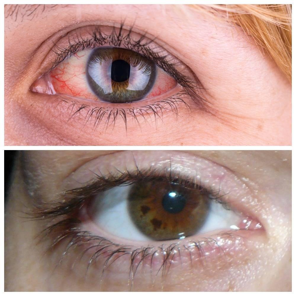 Ирит глаза: симптомы и лечение