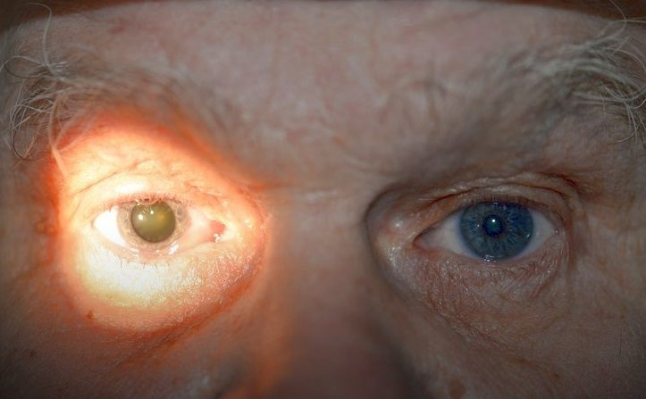Миоз (суженные зрачки): причины, симптомы и лечение