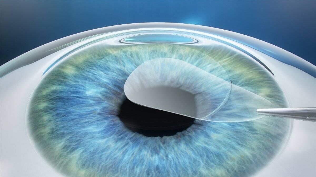 Сравнение методов коррекции зрения: ласик или фемтоласик, что лучше?