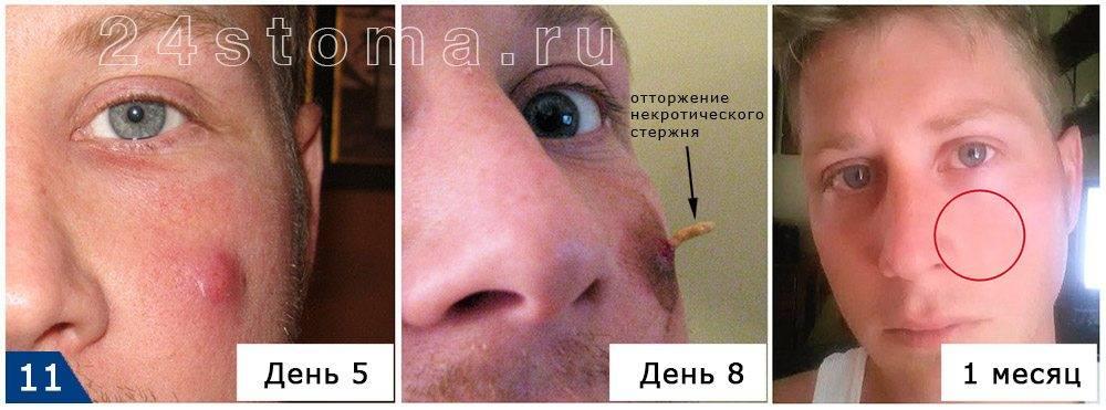 Чирей на глазу: лечение фурункула на веке в домашних условиях