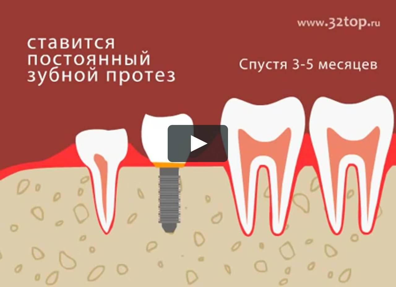 Рейтинг имплантов для зубов от премиального до бюджетного сегмента