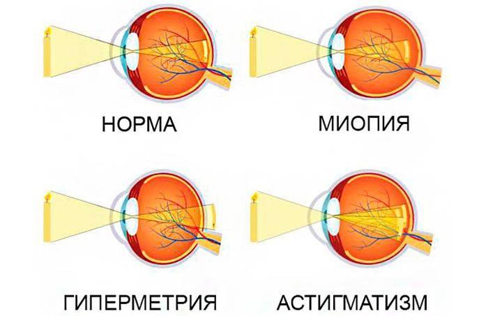 Очки при астигматизме для детей: как подобрать и привыкнуть?