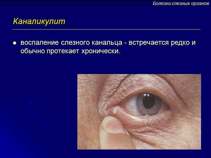 Симптомы и методы лечения воспаления слезной железы
