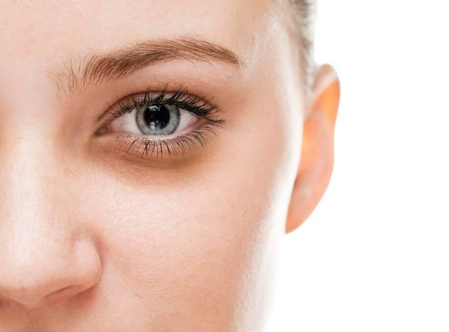 Круги под глазами – причины. белые и зеленые круги под глазами