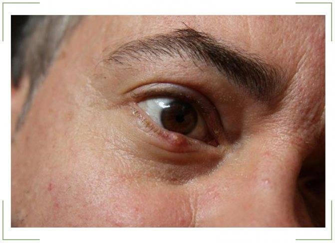 Можно ли вскрывать и выдавливать ячмень на глазу самостоятельно