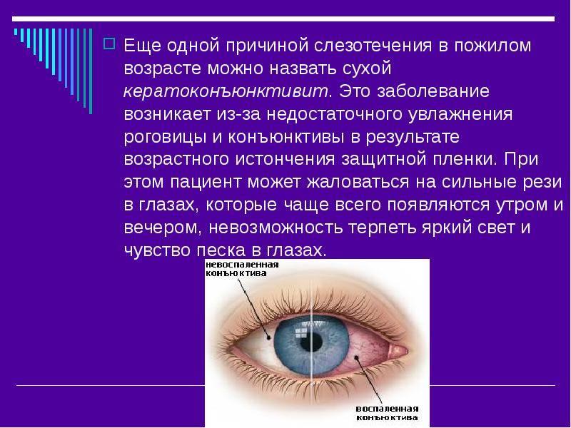 Слезятся глаза – что делать? причины и лечение